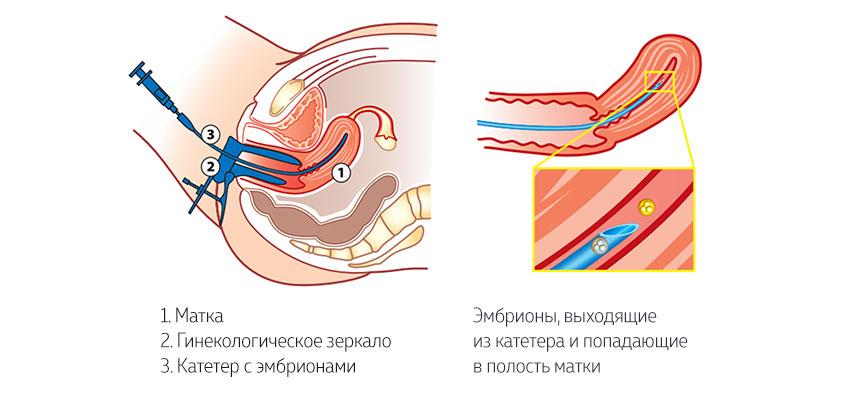 амоксиклав перенос эмбрионов